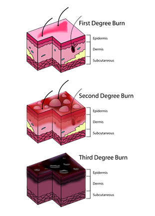 Burns can range in severity from mild to extremely severe. Houston burn injury lawyers can get you the medical care you need and provide you with legal advice when you need it most.